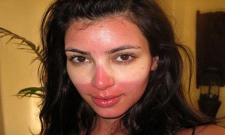 kim-kardashian-quemada-2